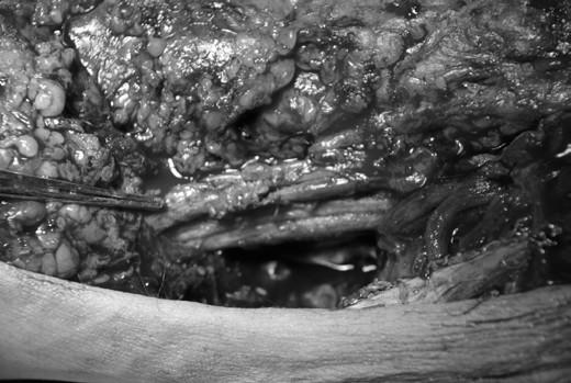 Obr. 3: Intaktní dorsální tibiální cévní svazek