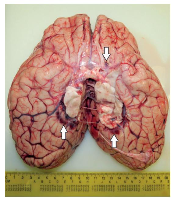 Dolná plocha mozgu s diskrétnymi zmenami (šípky).
