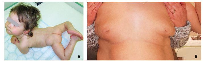 A. Strabismus, neprospívání a atypická distribuce tuku v oblasti zadečku u 12měsíční dívky s dědičnou poruchou glykosylace typu PMM2-CDG. B. Přetrvávající invertace mamil u 17leté dívky s PMM2-CDG.<br> Fig. 11. A. Strabism, failure to thrive and atypical supragluteal fat distribution in 12-month-old girl with congenital disorder of glycosylation (CDG) type phosphomannomutase deficiency (PMM2). B. Persisting nipple inversions in 17-year-old girl with PMM2-CDG.