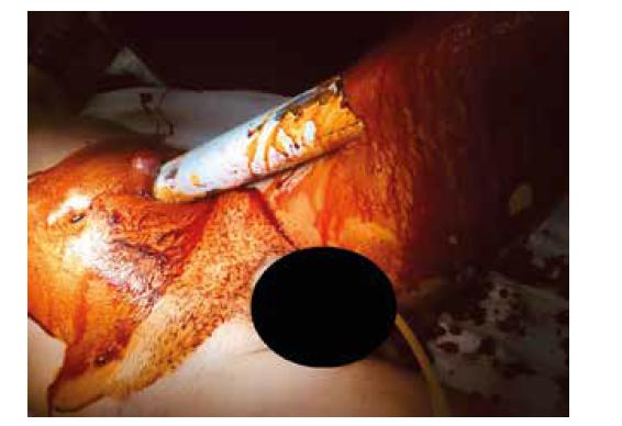 Vstup trubky – levé mezogastrium, jejunum<br> Fig. 9: Entry of the tube – left mesogastrium, jejunum
