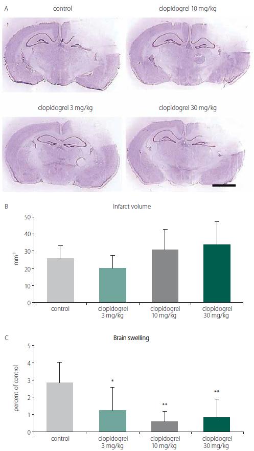A) Cresyl violet (Nissl staining) staining is commonly used to identify the neuronal structure in the brain. It is performed 24 h after the brain injury. (B) Infarct volume and (C) brain swelling. 24 h after brain injury, clopidogrel treatments did not change infarct volume development signifi cantly. However, treatments of 3 and particularly 10 or 30 mg/kg clopidogrel decreased brain swelling significantly. The values are given as mean ± SD. Distance bar = 2 mm. *P < 0.05; **P < 0.01 compared with vehicletreated control group<br> Obr. 1. (A) Barvení kresolovou violetí (barvení Nissl) se běžně používá k identifi kaci neuronální struktury v mozku. Provádí se za 24 h po poranění mozku. (B) Objem infarktu a (C) otok mozku. 24 h po poranění mozku léčba klopidogrelem nezměnila signifikantně rozvoj objemu infarktu. Avšak 3, ale zejména 10 a 30 mg/kg aplikovaného klopidogrelu signifi kantně snížilo otok mozku. Hodnoty jsou uvedeny jako průměr ± SD. Distanční lišta = 2 mm. *p < 0,05; **p < 0,01 v porovnání s kontrolní skupinou, které bylo podáváno vehikulum