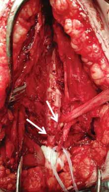 Žena (42 let), po zlomenině diafýzy humeru vlevo po pádu doma. Předoperačně obtížně vyšetřitelná (schizofrenie, stp. dětské mozkové obrně). Provedeny otevřená repozice a osteosyntéza dlahou za kontroly kmene n. radialis. Opakovaná EMG vyšetření prokázala trvající denervaci, 11 měsíců od úrazu provedena revize s odstraněním dlahy, pod kterou byl n. radialis uskřinut, proximální (levá šipka) a distální pahýl (pravá šipka) byly spojeny jen vazivovým pruhem. Po resekci jizevnatých konců nervu byl defekt délky 1,5 cm rekonstruován štěpy z větve n. radialis pro m. anconeus (n. suralis nepoužit pro obtížnou chůzi s rizikem jejího zhoršení po denervaci zevní hrany nohy). Dvanáct měsíců od výkonu známky reinervace na EMG, již udrží ruku v horizontále.<br> Fig. 1. A woman (42 years old) sustained a left-sided fracture of the humeral shaft after falling at home. She was diffi cult to examine due to schizophrenia and history of cerebral palsy. Open reduction and plate osteosynthesis were performed while checking the radial nerve. Repeated EMG examinations showed persisting denervation. A revision was performed 11 months after the injury. Radial nerve was found to be severely compressed after removal of the plate – the proximal (left arrow) and distal stump (right arrow) were connected only by the fi brous band. After resection of the scarred nerve endings, a 1.5 cm long defect was reconstructed with grafts from the radial branch of the anconeus muscle (the sural nerve could not be used due to diffi culty walking with the risk of its deterioration after denervation of the lateral edge of the foot). Twelve months after revision, EMG showed signs of reinnervation and she is able to hold the hand horizontally.