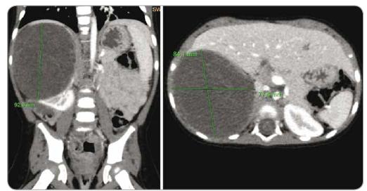 Počítačová tomografie břicha pacientky z kazuistiky 3 – cystický nefrom pravé ledviny.