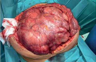 Peroperační nález I (liposarkom)<br> Fig. 11: Peroperative finding I (liposarcoma)