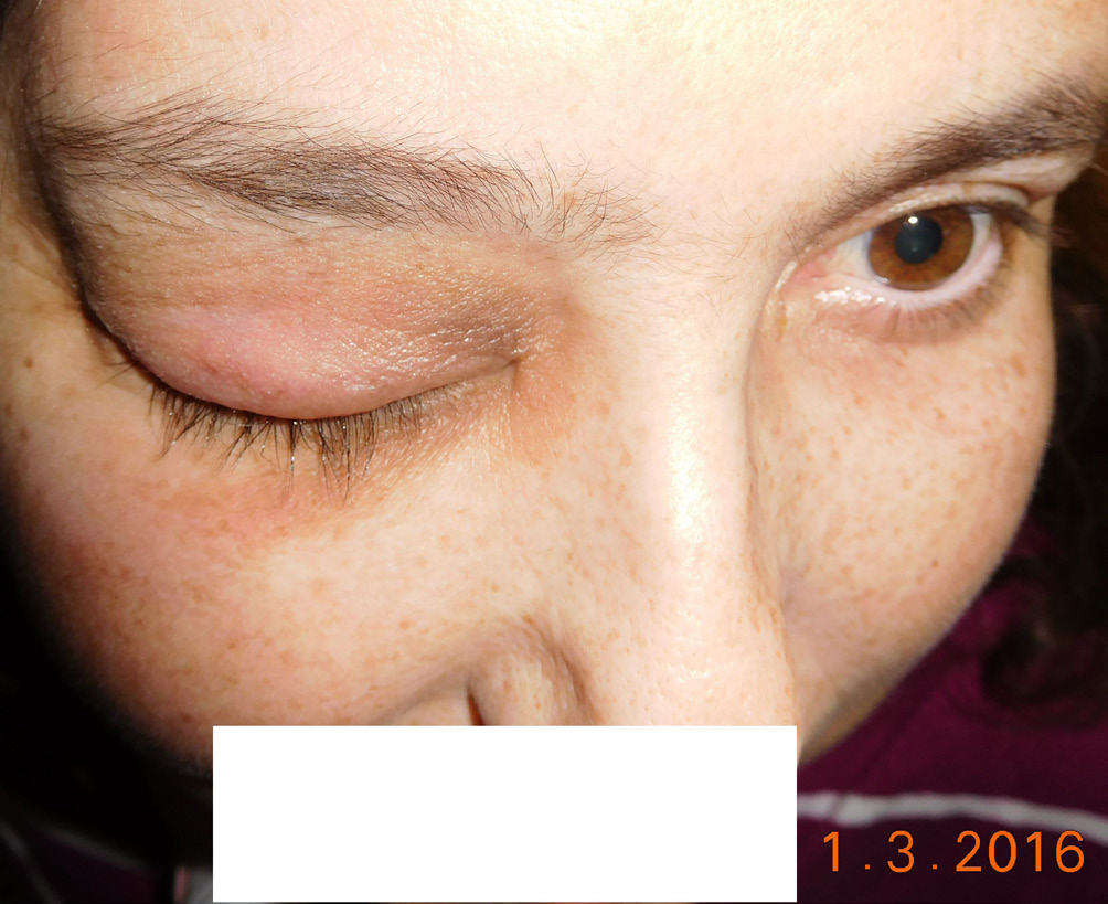 Patient in 3/2016, eyelids are without inflammation
