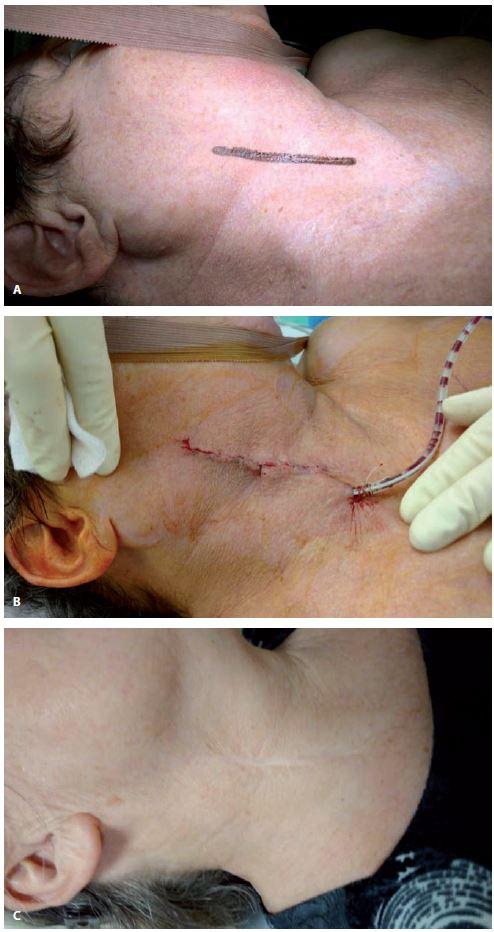 Předoperační (A), perioperační (B) a pooperační (C) obraz při použití krátkého podélného kožního řezu u karotické endarterektomie.<br> Fig. 2. Preoperative (A), perioperative (B) and postoperative (C) images of the short longitudinal skin incision during carotid endarterectomy.