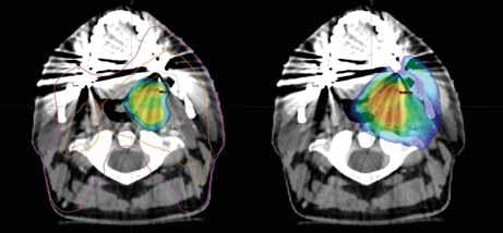 Dávkové rozložení v místě primárního tumoru; vlevo dávka 77,0 Gy dle 18F-FMISO s izodózami 77 % (oranžová) a 50 % (fialová); vpravo dávka 70,0 Gy pokrývající oblast tumoru dle 18F-FDG; CT a MR s bezpečnostním lemem plánovacího objemu.