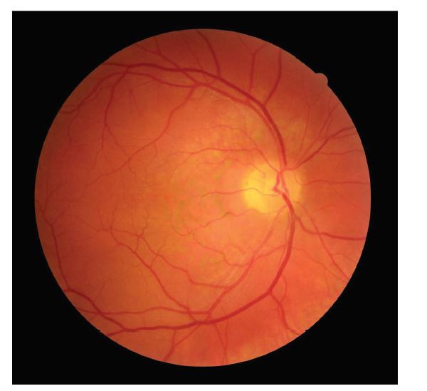 Snímek očního pozadí pravého oka pacienta s hemangiomem cévnatky