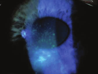 Corneal epitheliopathy in sicca syndrome