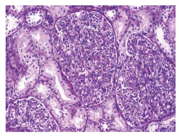 Zvětšené glomeruly s četnými polynukleáry v luminech kapilárních kliček. Intersticium je bez zánětu (barvení PAS).