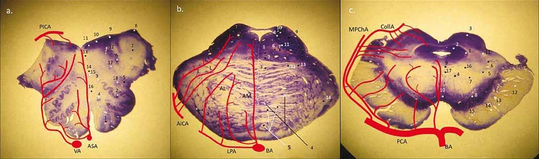 Obecné schéma perforujících arterií na úrovni oblongaty, pontu a mezencefala, tzn. rozdělení na anteromediální, anterolaterální, laterální skupiny a v oblasti mesencefala a pontu i posteriorní skupinu (z PICA, MPChA, CollA). (a) medulla oblongata – 1. pyramis medullae oblongatae; 2. ncl. olivaris inferior; 3. ncl. olivaris dosrsalis accessorius; 4. ncl. reticularis lateralis; 5. tr. spino-thalamicus (anterolaterální systém) a spinocerebellaris ant.; 6. ncl. et tr. spinalis nervi trigemini; 7. pedunculus cerebellaris inferior (corpus restiforme); 8. ncl. cuneatus accessorius; 9. ncl. vestibularis inferior et medialis; 10. ncl. dorsalis n. vagi; 11 ncl. nervi hypoglossi; 12. fasciculus longitudinalis medialis; 13. tr. tecto-spinalis; 14. lemniscus medialis; 15. ncl. ambiguus; 16 tr. et ncl. solitarius (b) pons – 1. fasciculus longitudinalis medialis; 2. tr. tecto-spinalis a tr. reticulo-spinalis; 3. lemniscus medialis; 4. ncl. pontis; 5. tr. corticospinalis (roztříštěné svazky pyramid); 6. tr. centralis tegmenti; 7. tr. rubrospinalis; 8. ncl. vestibularis superior; 9. pedunculus cerebellaris superior (brachium conjunctivum); 10. tr. et ncl. mesencephalicus CN V.; 11. ncl. motorius et pontinus CN V.; 12. tr. spino-thalamicus (anterolaterální systém); 13. tr. spinocerebellaris anterior; 14. peduncullus cerebellaris medius (brachium pontis) (c) mezencefalon – 1. ncl. mesencephalicus CN V.; 2. substantia grisea centralis; 3. colliculus superior; 4. ncl. ruber; 5. lemniscus medialis; 6. tr. spino-thalamicus (anterolaterální systém); 7. tr. cerebellothalamicus; 8. susbstnatia nigra (reticularis et compacta); 9. pedunculus (crus cerebri); 10. ncl. nervi oculomotorii (CN III.); 11. ncl. interpeduncularis; 12. ncl. spinotectalis; 13. tr. occipito-, temporo-, parieto-pontinnus; 14. tr. corticospinalis; 15. tr. corticonuclearis; 16. tr. fronto-pontinnus; 17. tr. centralis tegmenti; 18. fasciculus longitudinalis medialis AICA – arteria cerebelli inferior anterior; AL – anterolate