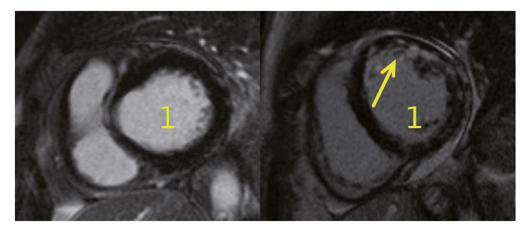 MR srdce u pacientek s MPA. Na obrázku vlevo je normální nález zjištěný u naší pacientky po podání cyklofosfamidu, vpravo je viditelné postižení myokardu při MPA (dilatace levé komory (1) s okrskovitou opacifikací stěny LK v bazálních a středních segmentech s převahou mid-wall lokalizace (šipka)