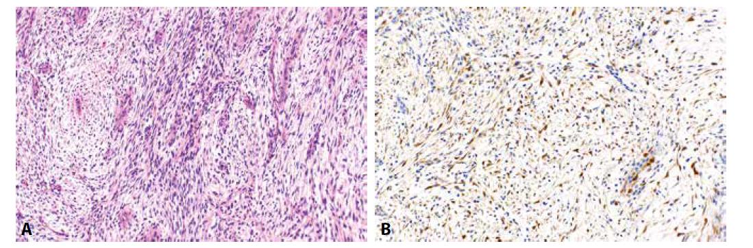 Zánětlivý myofibroblastický nádor (5A, HE, 200x). Nádorové buňky jsou pozitivní při průkazu ALK (5B, 200x).