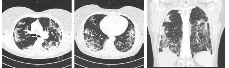 Obr. 5, 6 a 7 CT vyšetření hrudníku u 53leté pacientky sCOVID-19 (19. den trvání obtíží): vícečetné infiltrace a konsolidace v periferii plic oboustranně, lehké bronchiektázie vperiferních konsolidacích v dolních lalocích a lingule, dále patrné zvětšené uzliny plicních hilů a drobný fluidothorax oboustranně