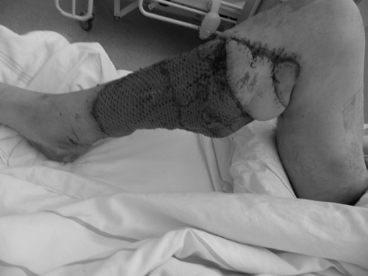 Obr. 6b: Stav po dermoepidermálním štěpu