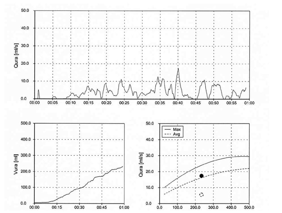 Domácí uroflowmetrie – Staccato křivka s použitím břišního lisu<br> Fig. 4. Home uroflowmetry – Staccato curve using an abdominal press