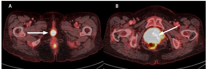 Obr. 2 a, b. Předoperační PET-CT, axiální sken<br> Fig. 2 a, b. Preoperation PET-CT, axial scan