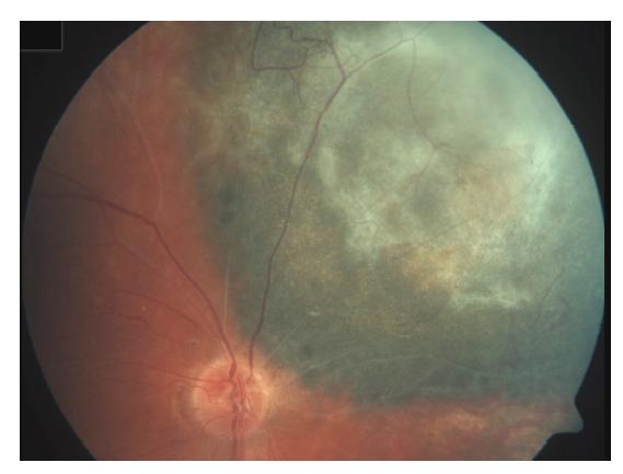 Obliterované cévy a vazivové změny v tumoru po protonové terapii