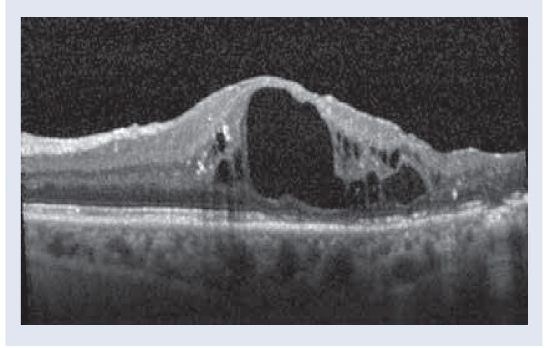 Obr. 3.1 | OCT obraz. Pred 1. aplikáciou depotného dexametazónu: cystoidný edém makuly už s veľkou cystou, atrofiou Müllerových buniek a poškodením vonkajších vrstiev fotoreceptorov, NKCOZ 20/80, 55 písmen, CST 689 μm. Snímky – archív autorky.
