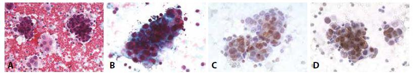 Příklady nejběžnějších karcinóz coelomových dutin: Žena 52 let triple - negativní karcinom prsu. Pleurální punktát.