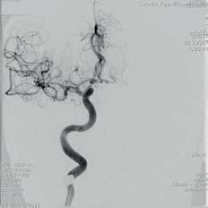 DSA pravé ACI v AP projekci u stejného pacienta po odstranění trombu a zprůchodnění, dobře se plní všechny větve ACM.