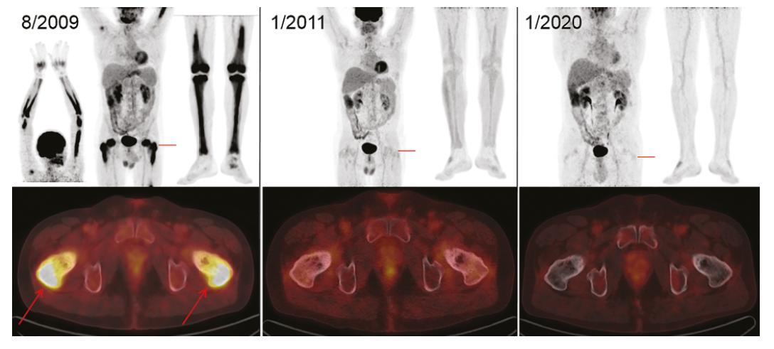Zobrazení nemoci pomocí FDG-PET/CT vyšetření: Vlevo iniciální sken s MIP projekcí trupu, horních i dolních končetin (v černobílé barevné škále). Červeně označené místo axiálního fúzovaného řezu (v barevné škále Hot Body) s maximem FDG-avidního postižení proximálních stehenních kostí (šipky) v korelaci se skleroticko-lytickou strukturou kosti. Uprostřed obraz svědčící pro remisi – vymizení patologických akumulací FDG ve skeletu horních i dolních končetin. Tento stav trvá i po 9 letech, což dokumentují identické obrázky vpravo. Akumulace FDG v mozku, ledvinách, močovém měchýři je fyziologická. Akumulace v myokardu, ve vzestupném tračníku v rámci variant fyziologického zobrazení