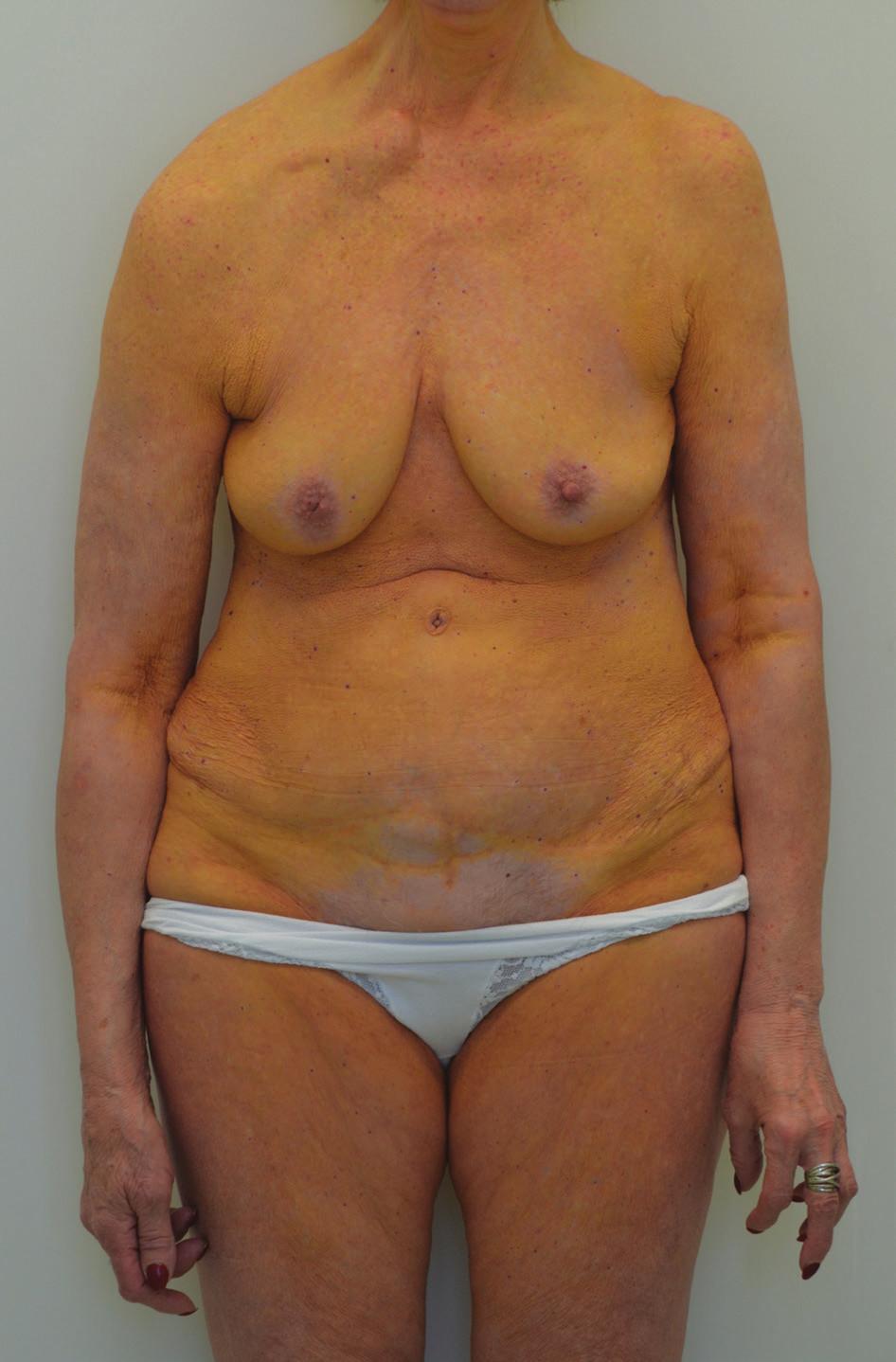 Žlutooranžové zbarvení přední strany trupu a končetin (oblast areol a podbřišku bez postižení), luxace pravé klavikuly