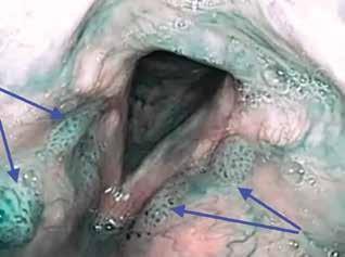 Vícečetné léze papilomů v oblasti obou vestibulárních řas hrtanu v NBI (IPCL IV. typu dle Ni, značeno modrými šipkami)