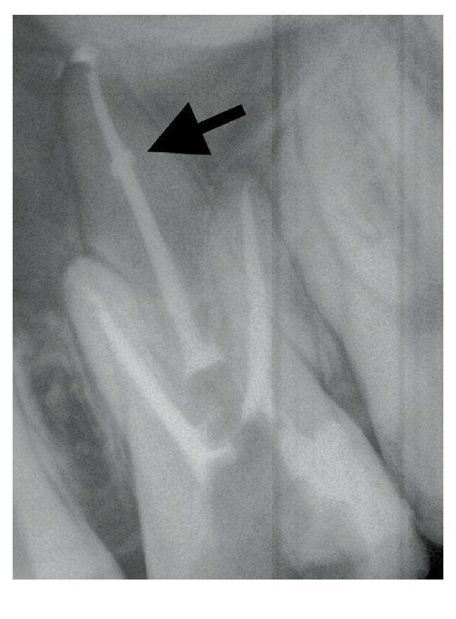 RTG snímek zobrazující schopnost sealeru vyplnit nepravidelnosti kořenového kanálku jako prostor způsobený vnitřní resorpcí <br> Fig. 6 X-ray image showing the ability of abioceramic-based sealer to fill irregularities in the root canal space, eg the space caused by internal resorption