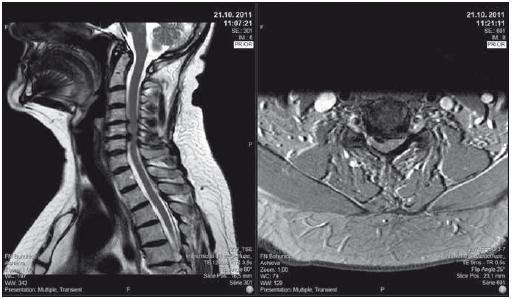 Pacient se středně těžkou degenerativní cervikální myelopatií, klinicky lehká kvadruparéza (lehce neobratné ruce, parestézie rukou, lehce nejistá chůze), dle mJOA 12; pacient sám již řadu let stabilní, operaci odkládá. T2-vážené sekvence, vlevo sagitální řez, vpravo axiální řez v úrovni maximální komprese. mJOA – modifikovaná škála Japonské ortopedické asociace<br> Fig. 2. Patient with moderate degenerative cervical myelopathy, clinically mild quadriparesis (clumsy hands, paresthesias of the hands, light gait ataxia), mJOA 12; surgical intervention offered, patient prefers conservative treatment, neurologic status is stable for years. T2-weighted sagittal scan on the left side, axial scan at the level of maximal compression on the right side. mJOA – the modified Japanese Orthopaedic Association scale
