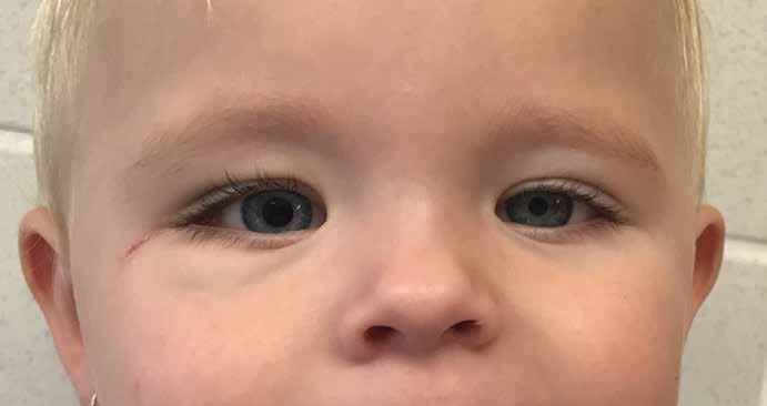 Fotografie pořízená půl roku po operaci. Přetrvávající střední mydriáza pravého oka a mírná asymetrie obličeje