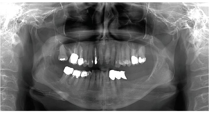 Obr. 3 Ovoidní projasnění sahající od kořene zubu 47 distálně do poloviny výšky ramus mandibulae l.dx. <br> Fig. 3 Ovoid cyst lesion from radix of tooth 47 to ramus of mandible on the right side