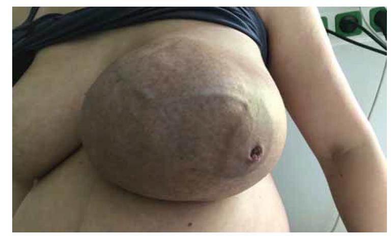 Obrovský fibroadenom prsu ve 35. týdnu těhotenství – venostáza, vpáčená bradavka.<br> Fig. 2. Giant breast fibroadenoma in 35th week of pregnancy – venostasis, nipple inversion.