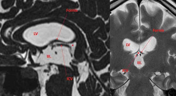 Velum interpositum (*) je subarachnoidální prostor mezi stropem III. komory a fornixy. Obsahuje ICV. Leží mimo III. komoru a LV a za normálních okolnosti komunikuje se suprapineální části quadrigeminální cisterny. ICV – vnitřní mozková žíla; LV – postranní komora<br> Fig. 2. Velum interpositum (*) is a subarachnoid space between the roof of the IIIrd ventricle and the fornices. It contains ICV. It lies outside the IIIrd ventricle and LV and normally communicates with the suprapineal part of the quadrigeminal cistern. ICV – internal cerebral veins; LV – lateral ventricle