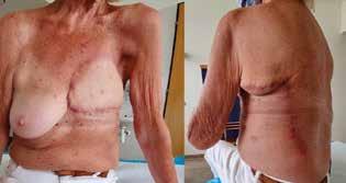 Při ambulantní kontrole měsíc po operaci<br> Fig. 6: One month after the surgery