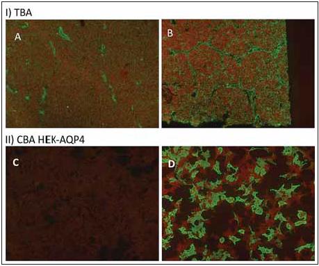 Tkáňové řez a cell-based assay u AQP4-IgG pozitivního pacienta.<br>Fig. 2. Tissue based assay and cell-based assay for AQP4-IgG.