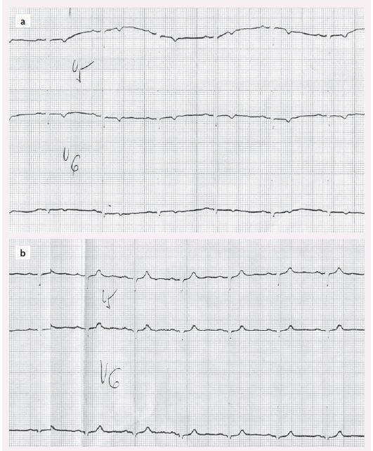 EKG u hypotyreózy – a) negativní T u neléčené hypotyreózy, b) normalizace po léčbě levotyroxinem.