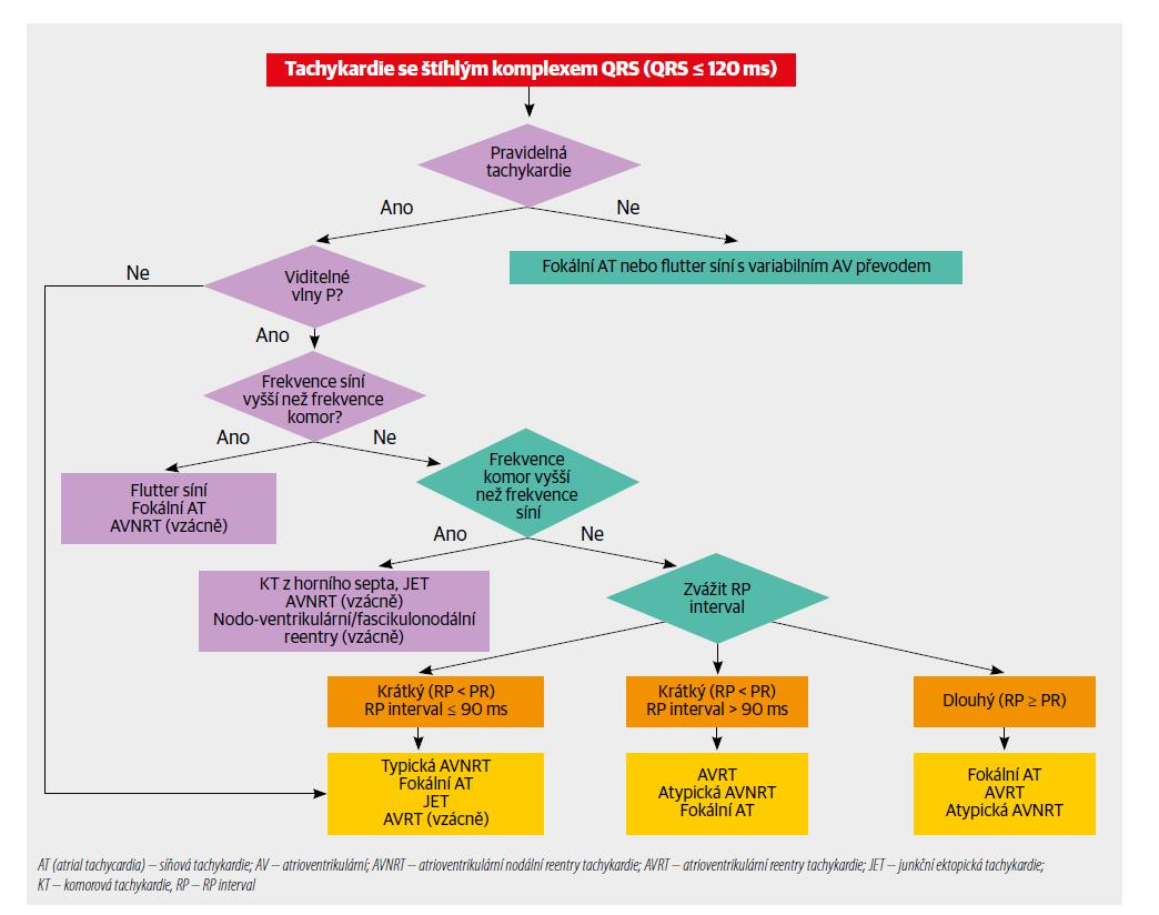 Diferenciální diagnóza tachykardie se štíhlým komplexem QRS. Záznam retrográdní vlny P je nutno získat natočením 12svodového elektrokardiogramu a v případě potřeby s použitím Lewisova svodu, nebo dokonce jícnového svodu napojeného na prekordiální svod (V1) pomocí svorek. Mezní hodnota 90 ms je spíše uměle zvolená hodnota pro měření povrchového EKG záznamu v případě viditelných vln P a vychází z omezeného množství údajů. V elektrofyziologické laboratoři je mezní hodnota VA intervalu 70 ms. Junkční ektopická tachykardie se může projevovat i jako AV disociace.1