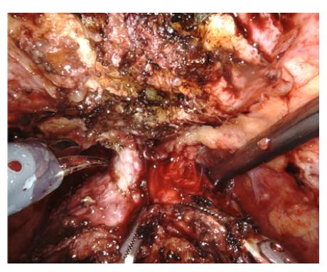 Incize Santorinského plexu nůžkami za použití 30 ° optiky rotované ventrálně<br> Fig. 6. Cut of Santorini plexus – 30 ° optics with ventral rotation