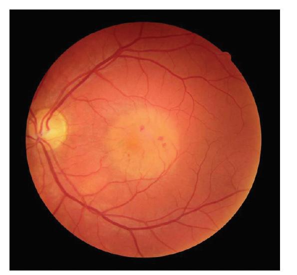 Snímek očního pozadí levého oka pacienta s chorioretinitidou