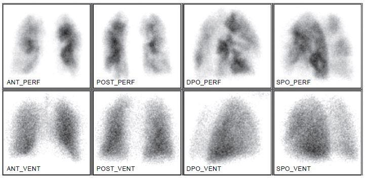 Perfuzně-ventilační plicní scintigrafie ukazuje efekt uzávěru větví plicní tepny na prokrvení plicní tkáně. Distribuce ventilace je normální.