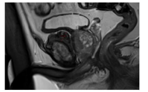 MRI, T2 vážení, sagitální řez oblastí pubické symfýzy; měřítkem označena masivní protuberance šíře až 1,9 cm<br> Fig. 1. MRI, T2, sagittal view through pubic symphysis; massive pubic protuberance marked with gauge, width up to 1.9 cm
