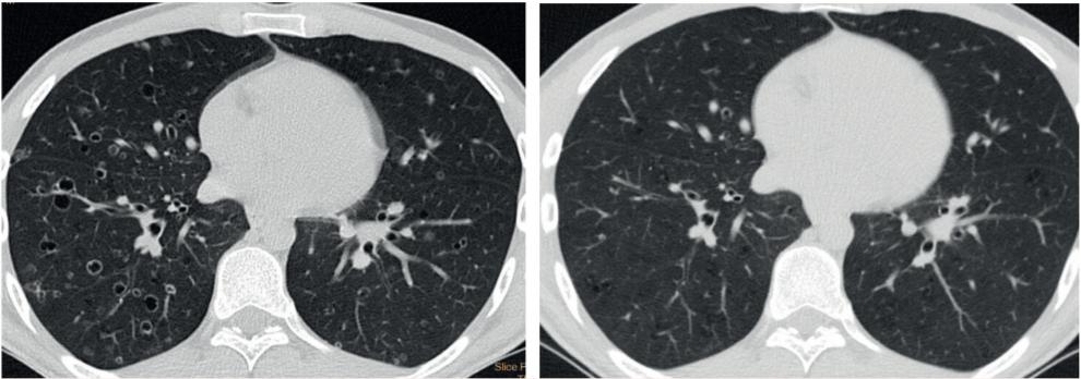 HRCT hrudníku u muže kuřáka v době stanovení diagnózy a po zanechání kouření s regresí nálezu cystoidních ložisek a kavitujících cyst