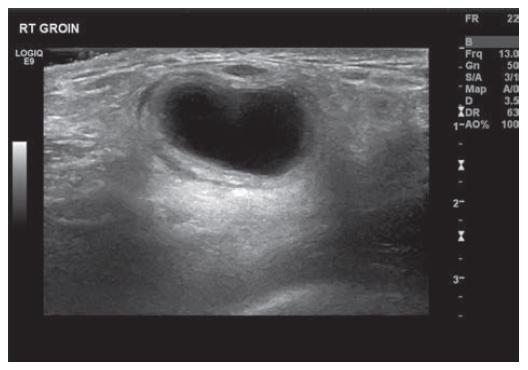 Ultrazvuk pravé kyčle zobrazující cystu<br> Fig. 1: US right groin showing cyst