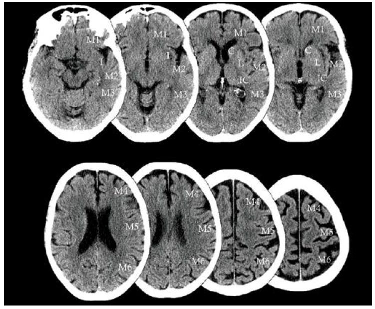Grafické znázornění skóre ASPECT pro hodnocení časných ischemických změn v povodí <i>arteria cerebri media</i>