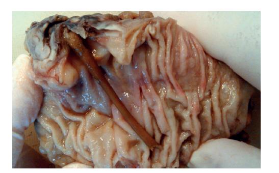 Resekát sestupného tračníku s kostí perforovaným divertiklem<br> Fig. 4: The specimen of the descending colon with perforated diverticulum by bone