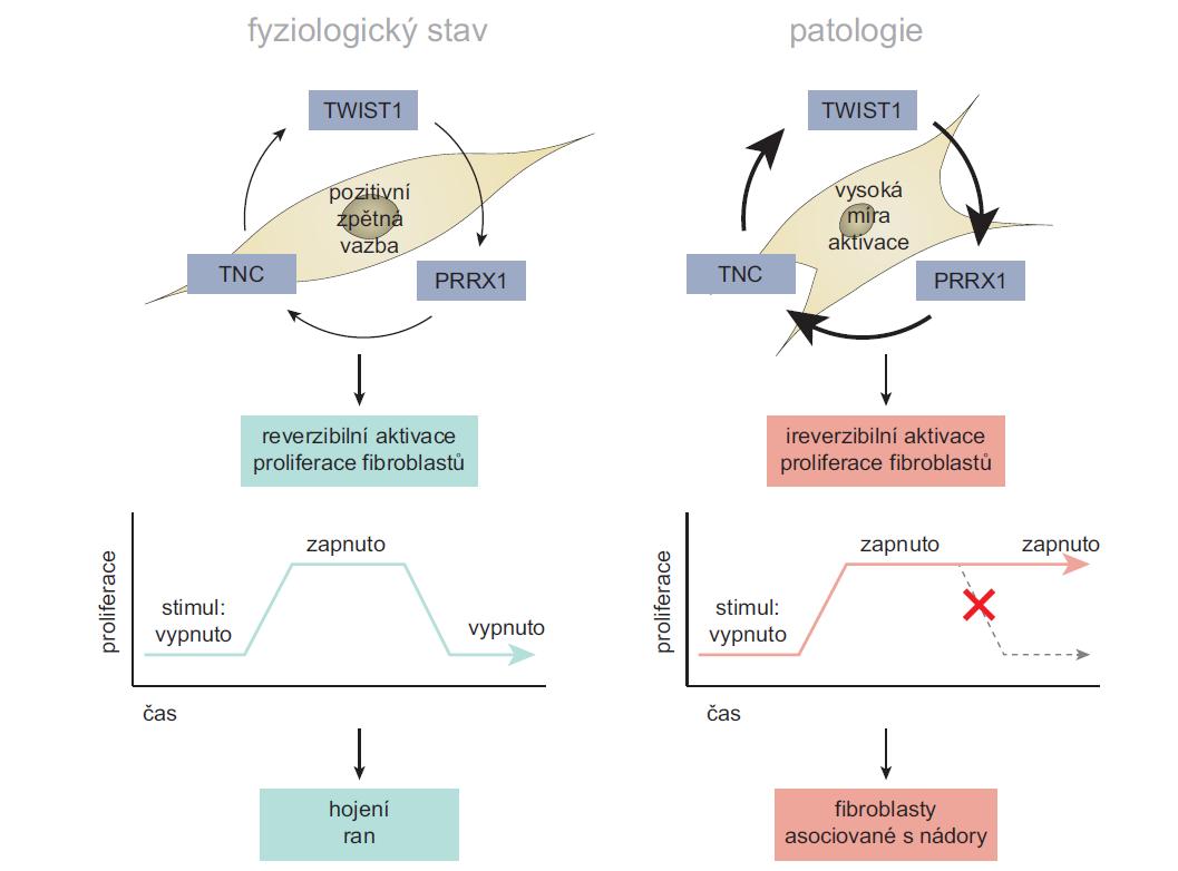 """1. Aktivace fi broblastů pomocí Twist1-Prrx1-TNC pozitivní zpětné vazby. Za normálních podmínek působí zpětná vazba mezi Twist1-Prrx1 a TNC jako reverzibilní přepínač. Fibroblasty se vyskytují v aktivovaném stavu pouze po dobu jejich dostatečně vysoké stimulace (stav """"zapnuto""""). Po odeznění stimulačních impulzů přepínač přejde do stavu """"vypnuto"""". Za patologických podmínek však může dojít k trvalému zapnutí tohoto přepínače, což vede k trvalé aktivaci fi broblastů. Volně přepracováno dle [19]."""