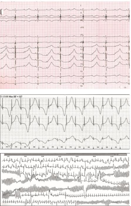 Syndrom dlouhého QT intervalu. 2A. Extrémně vyjádřený LQT syndrom usymptomatického novorozence. QTc 725 ms, funkční AV blok  II. stupně spřevodem 2:1. P vlny jsou označeny šipkami. 2B. Alternující T vlny typické pro těžký fenotyp LQT syndromu. 2C. Komorová tachykardie torsades de pointes stypickou měnlivou polaritou QRS komplexů vedoucí ksynkopě.