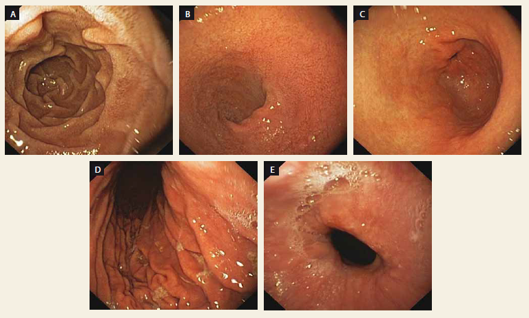 Endoskopický nález u pacienta pred antikoagulačnou liečbou. A – D2 duodénum, B – bulbus duodéna, C – antrum žalúdka, D – telo žalúdka, E – distálny pažerák.<br> Fig. 1. Endoscopic finding in patient before anticoagulant therapy. A – D2 duodenum, B – duodenal bulbus, C – stomach antrum, D – stomach body, E – distal oesophagus.