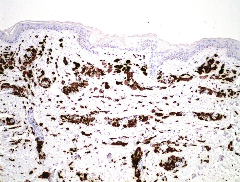 Obr. 3b. Imunohistochemické vyšetření: CD68 (10x)